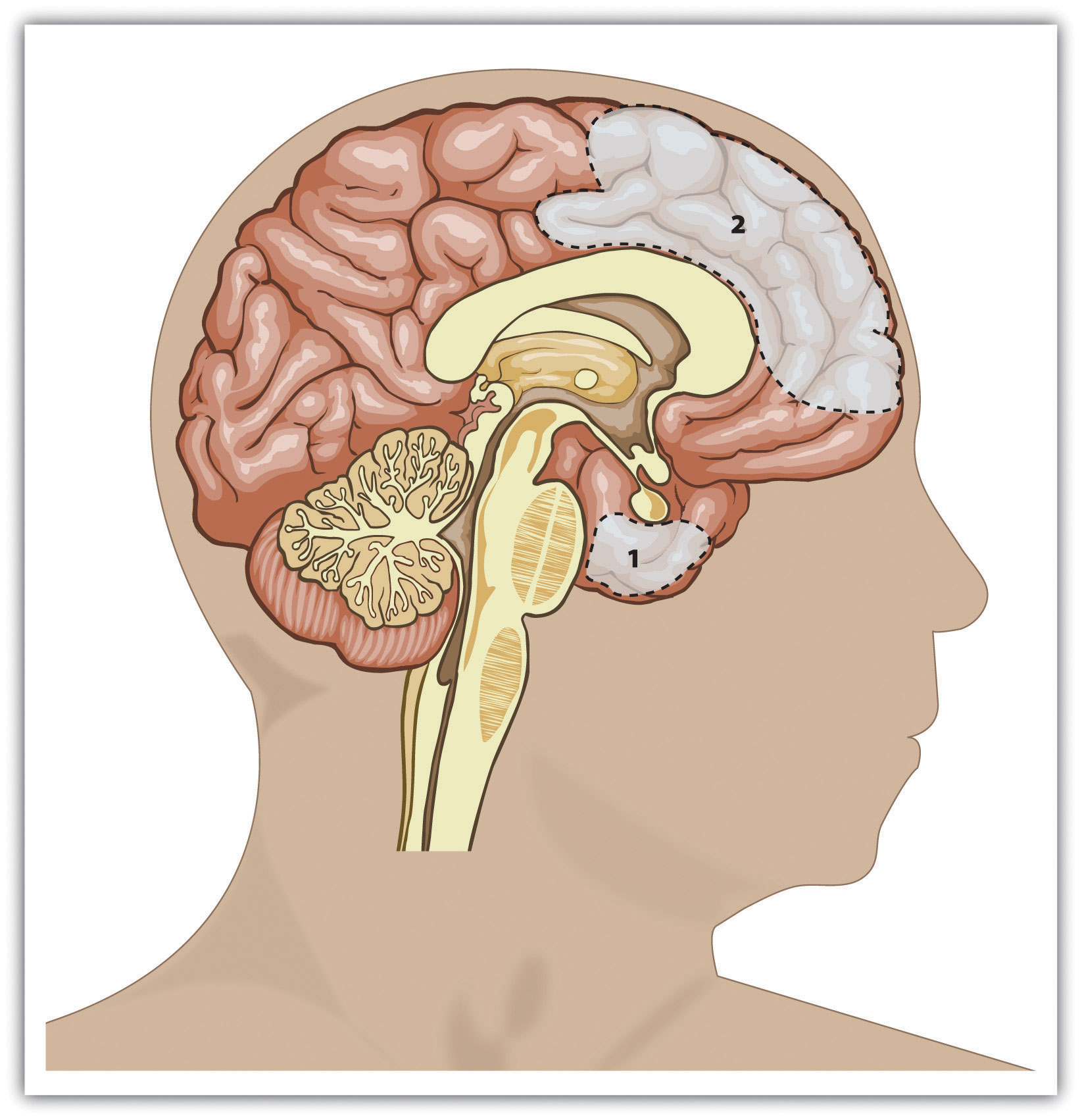 Brain regions that influence aggression include the amygdala (area 1) and the prefrontal cortex (area 2). Individual differences in one or more of these regions or in the interconnections among them can increase the propensity for impulsive aggression.