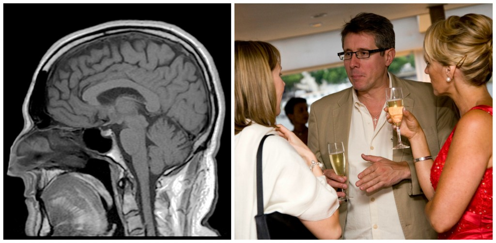 The cerebral cortex is the part of the brain that is involved in thinking. A big part of its job is social cognition--thinking about and understanding other people. (Picture of a brain x-ray, and a pictures of a group of people drinking champagne