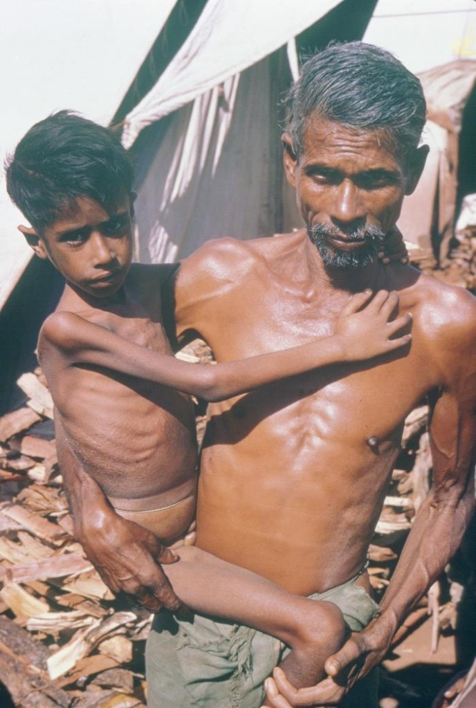 A man with his malnourished child
