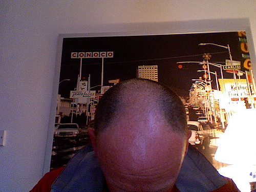A bald man's head