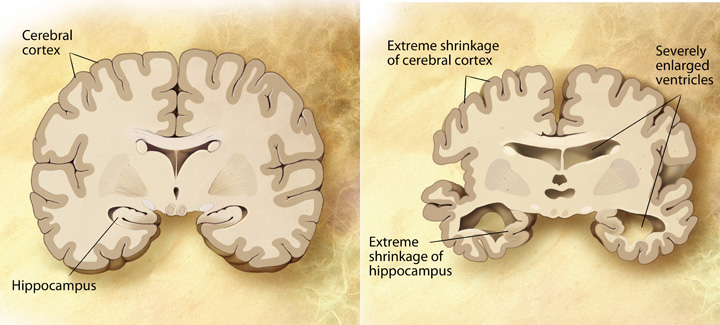 A healthy brain versus a brain with advanced Alzheimer's disease (shrinking of hippocampus and cerebral cortex)