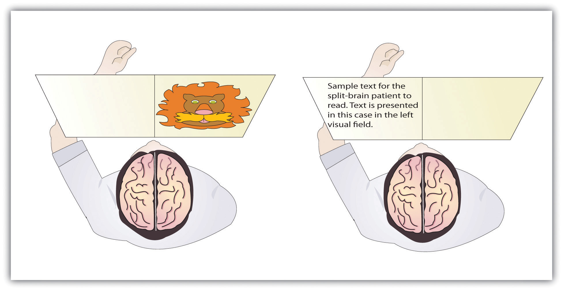 Visual and verbal processing in the split-brain patient