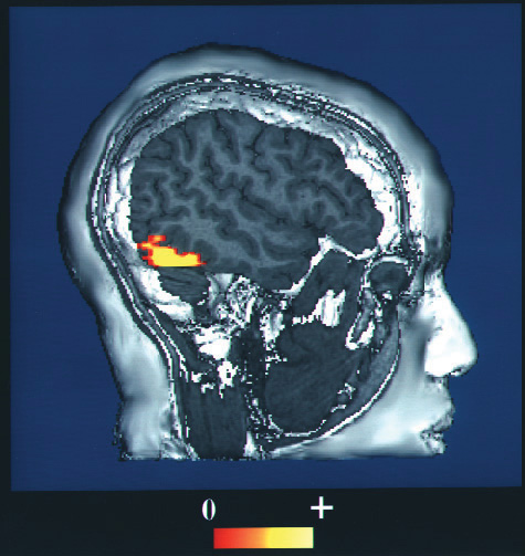 fMRI image