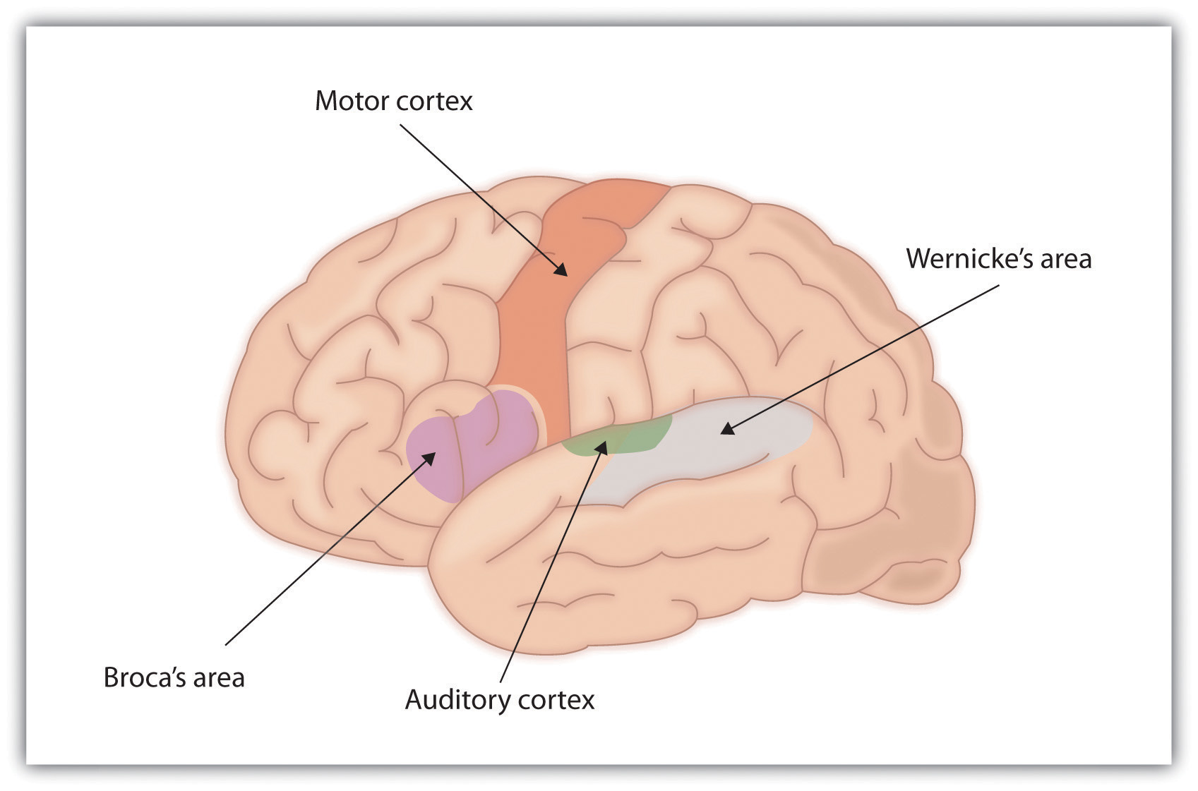 Drawing of Brain Showing Broca's and Wernicke's Areas