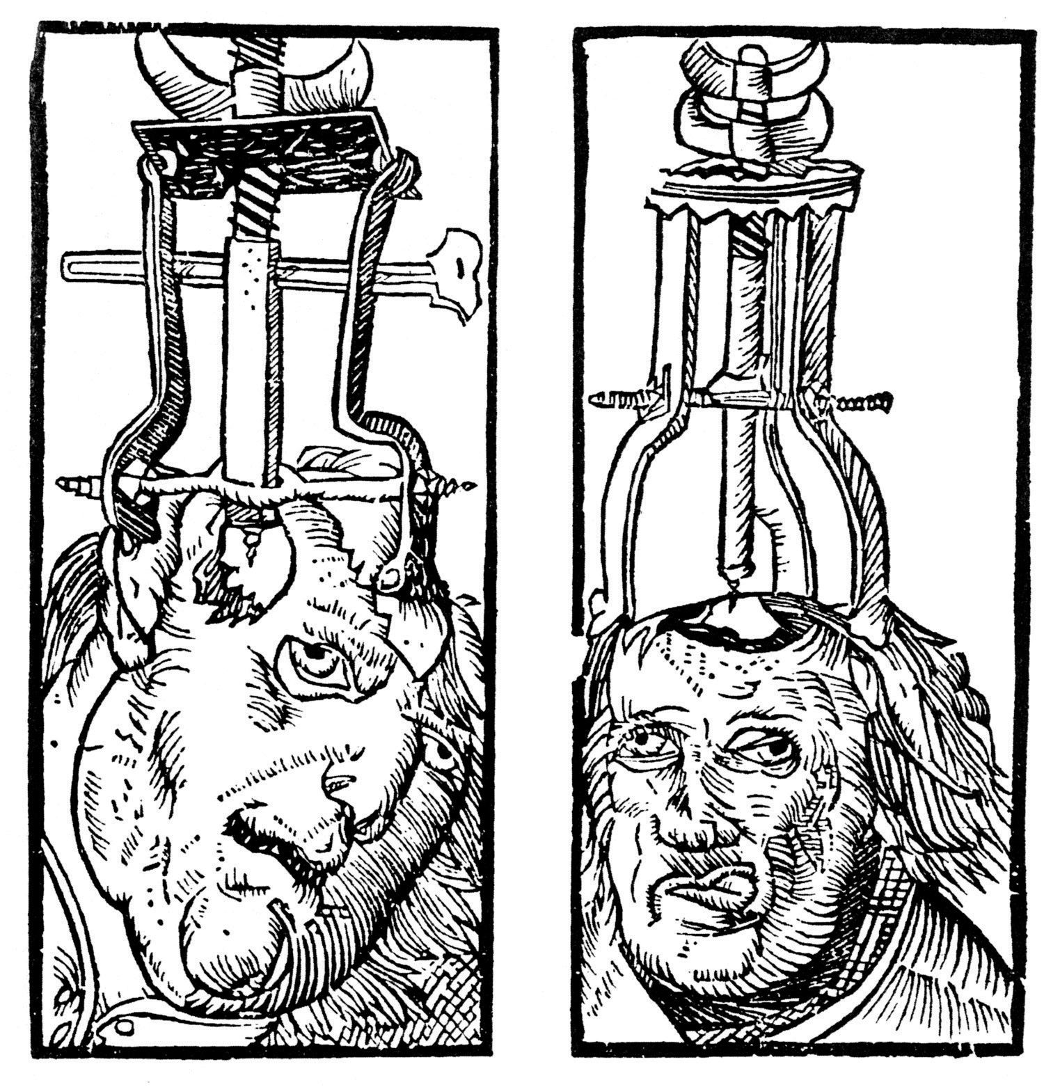 Trepanation (drilling holes in the skull) has been used since prehistoric times in attempts to cure epilepsy, schizophrenia, and other psychological disorders.