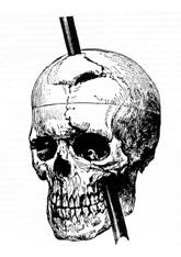 Phineas Gages skull diagram