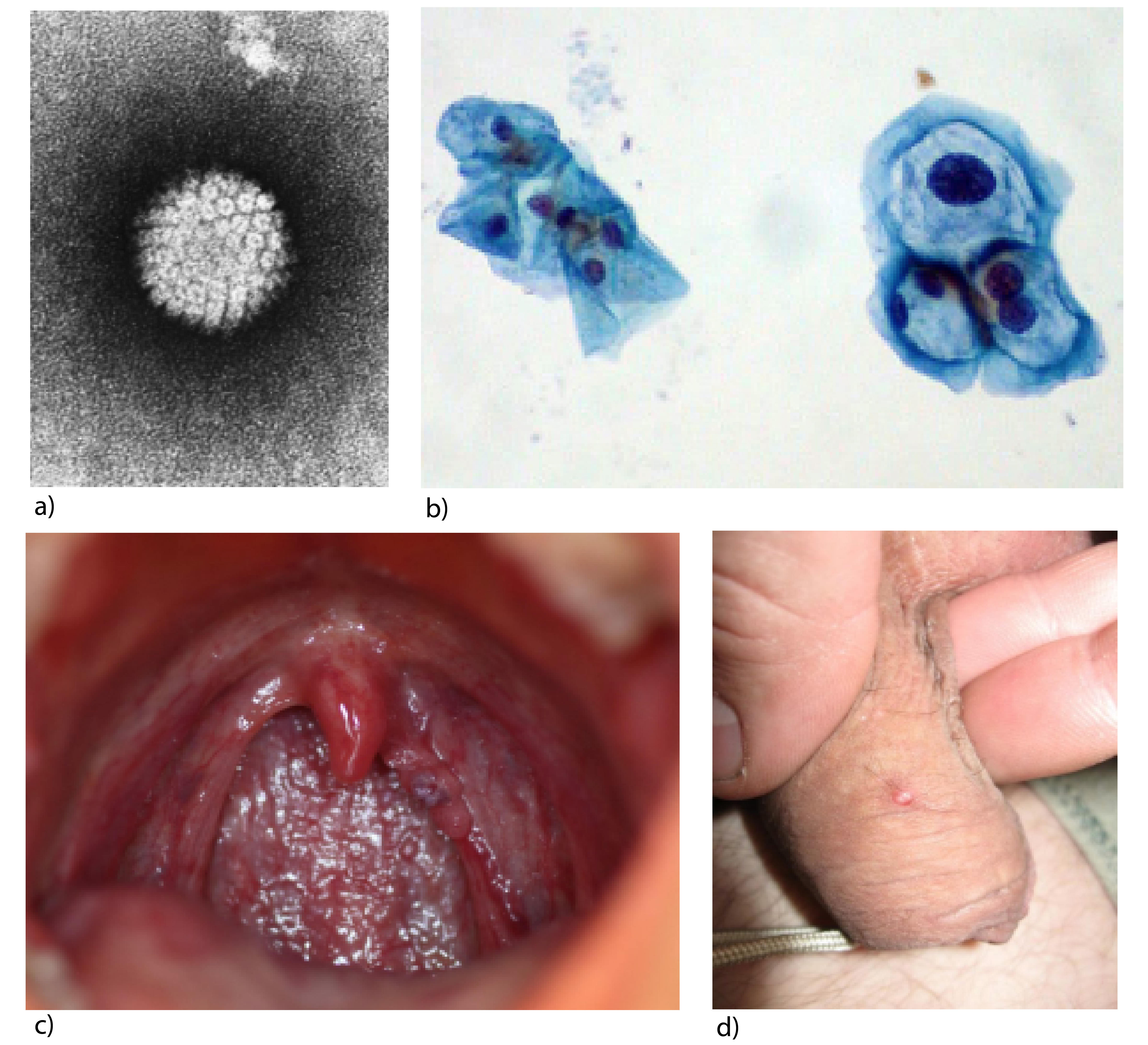 cervical papilomavirus uman)